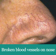 Broken blood vessel on nose